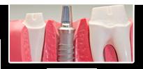 sydney pymble Dental Implants