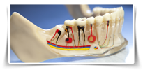 sydney pymble Root Canal Therapy