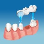 pymble bridge dental