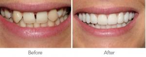 pymble-crown-dental