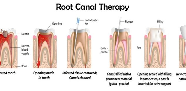 Why is a root canal necessary?