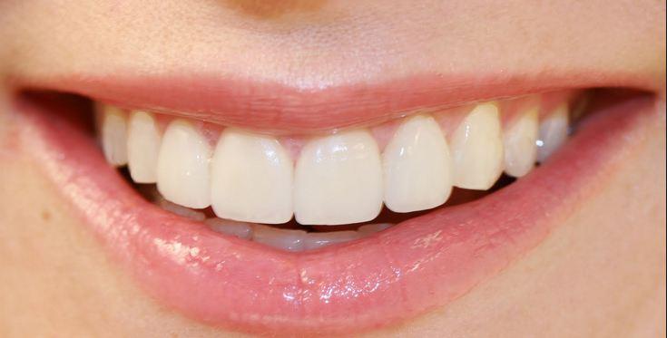 teeth pymble dentist