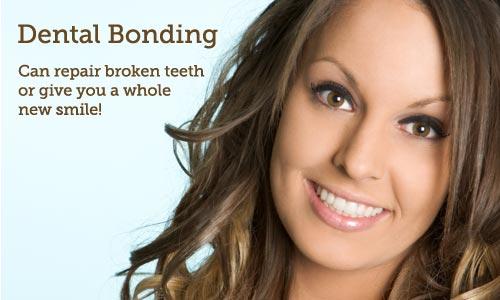 Dental Bonding Pymble Dentist