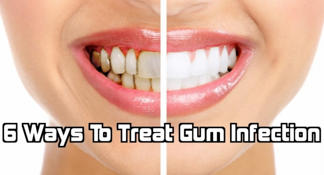 6 Ways To Treat Gum Infection